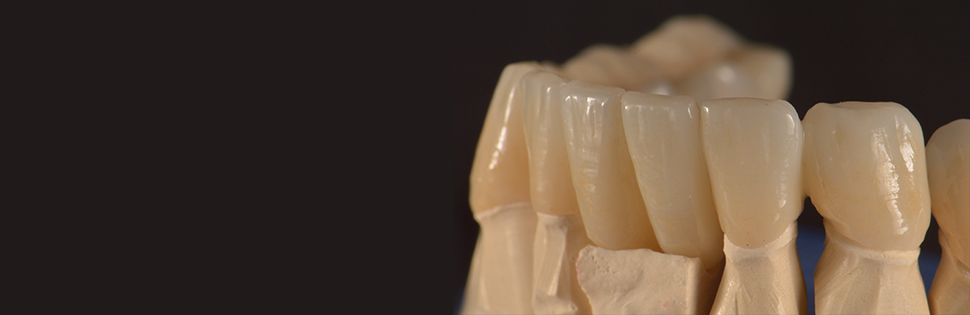 Dental Implant on Wax-up